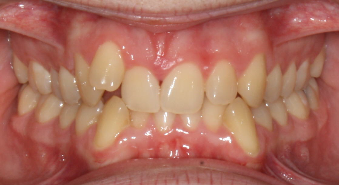 Brazones_Orthodontics_before