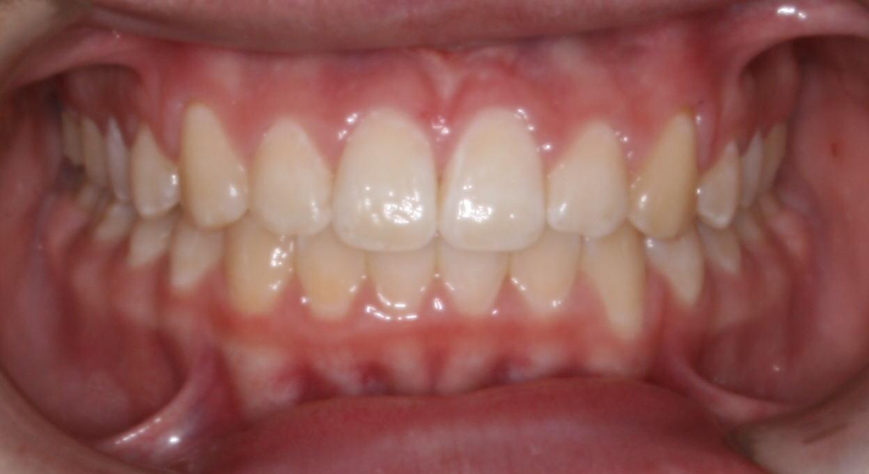 Brazones_Orthodontics_after